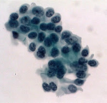 Bronchials (cytology)