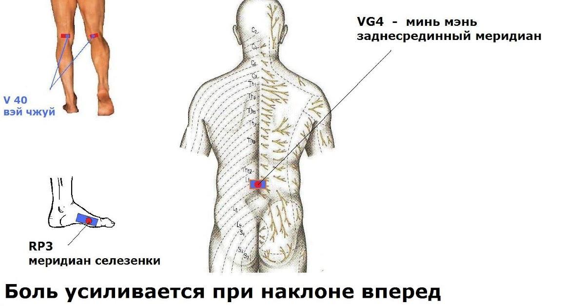 Болит шея при наклоне вниз Боль в шее