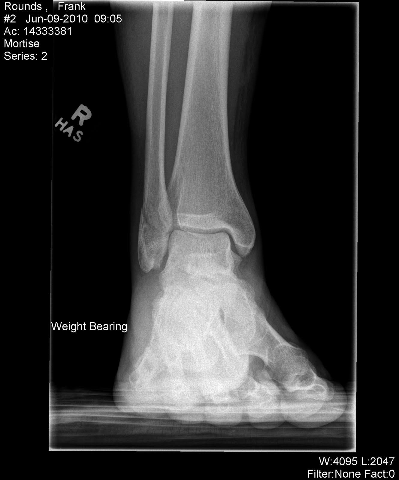 Distal fibula fracture