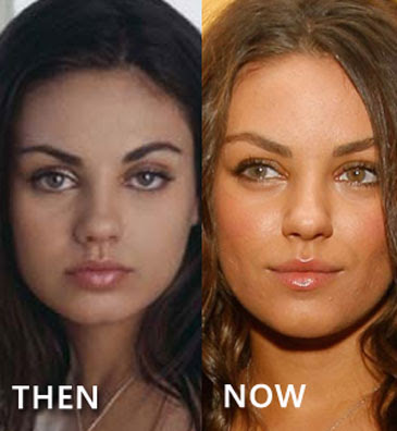 Mila Kunis to way in on the issue of plastic