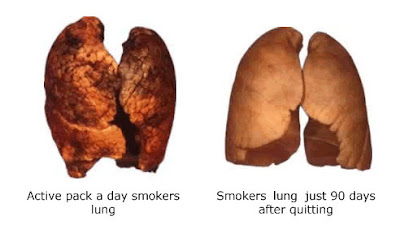 effect of smoking