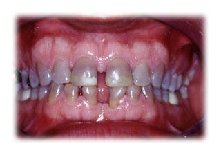 antibiótico dentes
