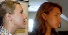 Profile Before and After