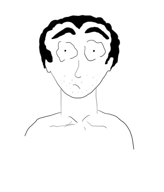 calvitie homme rétrospective capillaire
