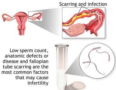 infertlity+ +causes Rawat Keputihan Anda!