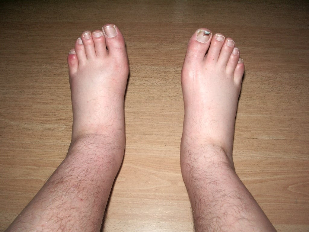 Why Are My Feet Swollen After Drinking Alcohol