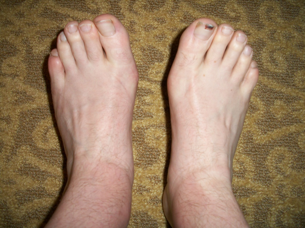 Swollen Ankles When Drinking Alcohol