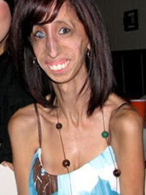 Lizzie Velasquez‎ Has to eat 60 Meals A Day to stay alive