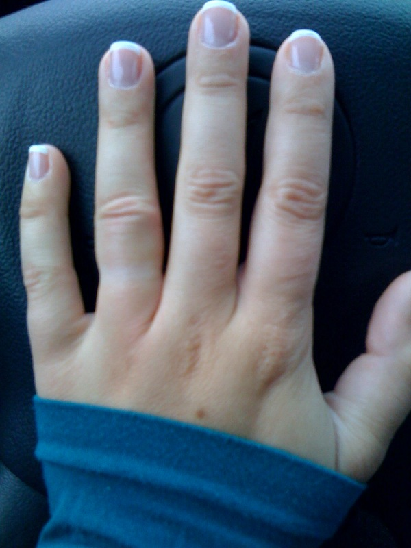 how to get a ring off your swollen finger