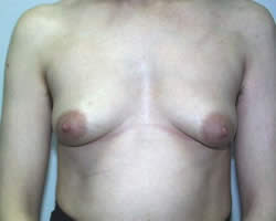Ginecomastia: Desenvolvimento de seios no Homem