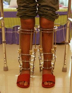 leg length surgery cost