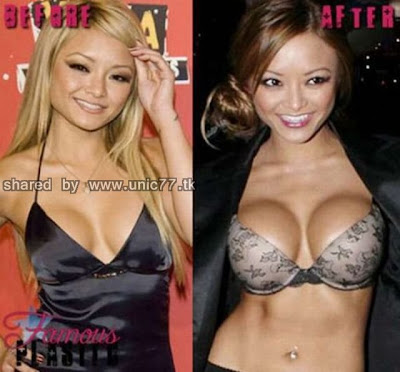 enlarged_celebs_breasts_640_04.jpg (640×595)
