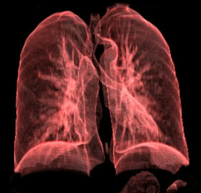 Gangguan flek paru-paru