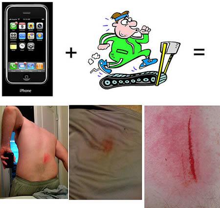documented i Phone injury