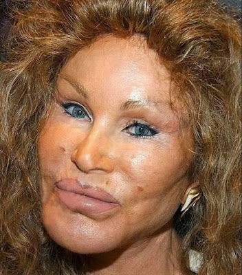 Jocelyn wildenstein catwoman plastic surgery horror