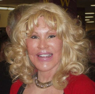 Jocelyn Wildenstein: Catwoman Plastic Surgery Horror