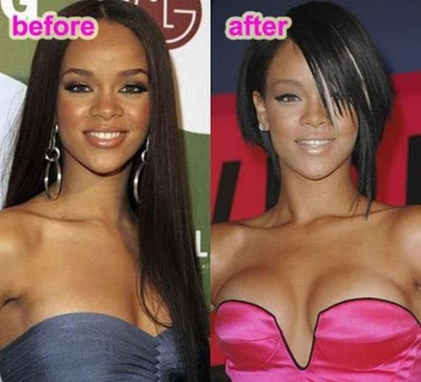 10 Most Popular Celebrity Breast Implants - Glitzyworld