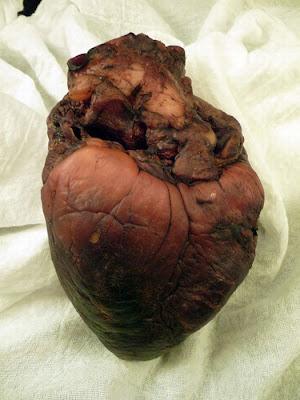 [Image: mummified_vampire_heart_06.jpg]