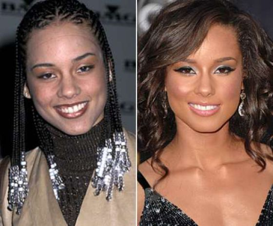 Celebrity Nose Job Before and After - 44.5KB