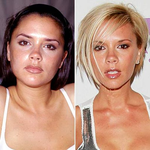 Celebrity Nose Job Before and After - 43.8KB