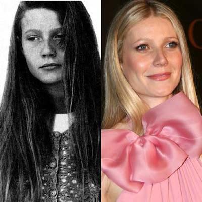 Celebrity Nose Job Before and After - 40.0KB