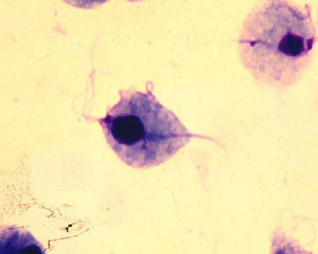 trihomonadi-v-sperme-kudryashov
