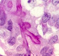 Aspergillus fungus invading lung tissue