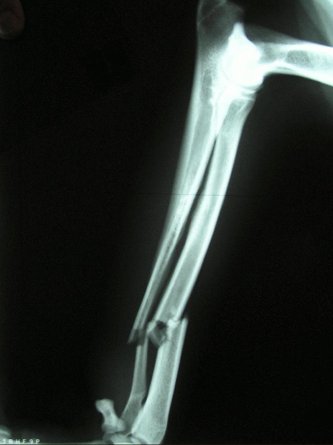 Kelainan Dan Gangguan Pada Tulang Kelainan Pada Tulang Leher Dan