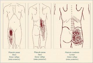 los problemas de la espalda: