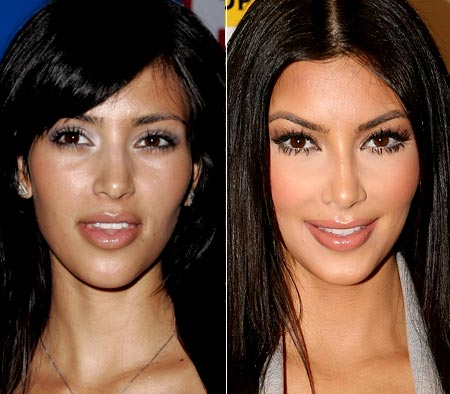 kim kardashian plastic surgery before. Kim Kardashian quot;Beforequot; and