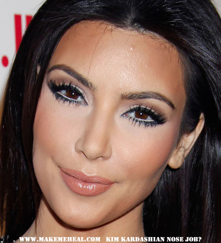 Kardashian    Surgery on Flora De La Luna  Kim Kardashian  Before  And  After  Plastic Surgery
