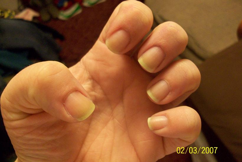 Crafty Court: Nail Disaster!