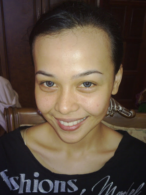 dr lina... before