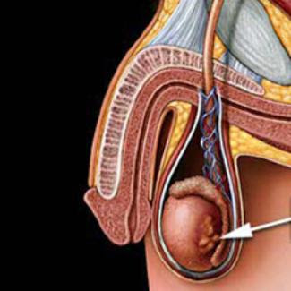 Un examen testicular es una inspeccionar la apariencia y ver como