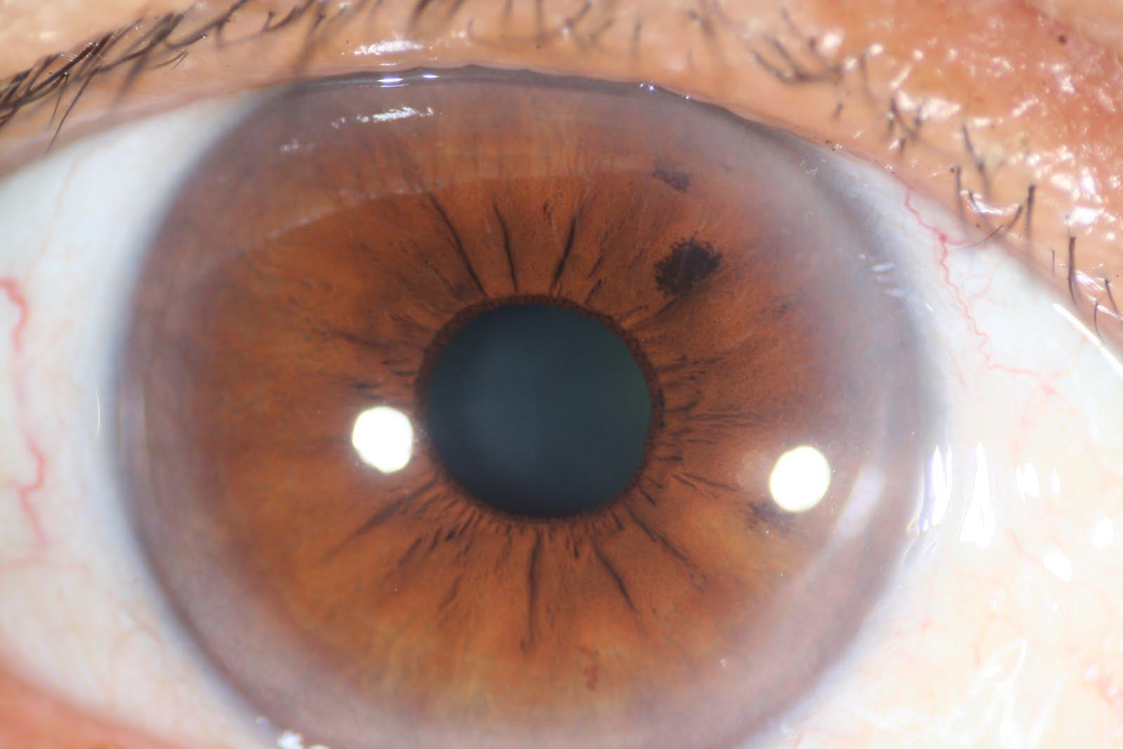 Nerve Rings In Iris