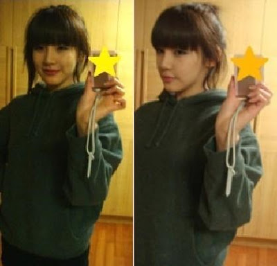 Park Bom Before Surgery http://kjpopbands.blogspot.com/2009/10/pictures-2ne1-park-boms-past-revealed.html