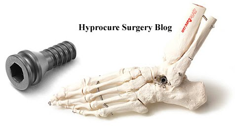 Hyprocure Implant  - Flat Feet Corrective Surgery