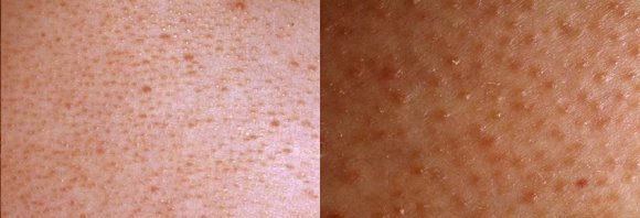 how to get rid of red pimples on arms
