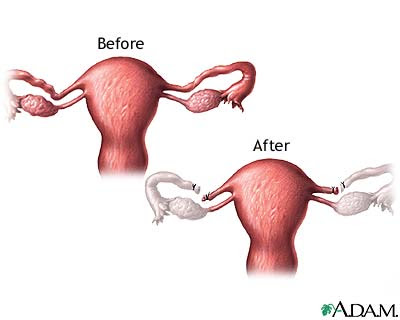 The chances of getting pregnant again after reversal is very slim and there ...