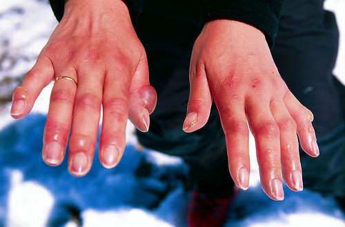 [marg's-fingers-after-the-descent-of-aconcagua.jpg]