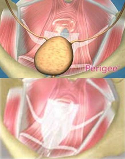 Mallas para prolapso genital