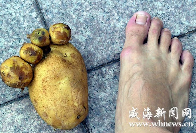 Potato that resembles a human foot