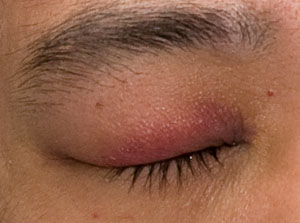 Swollen Eyes Causes and Treatment