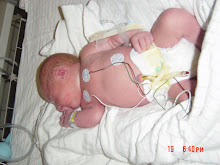 Walker in the NICU