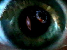 My eye on the universe