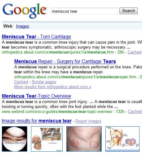 meniscus tear Google image search