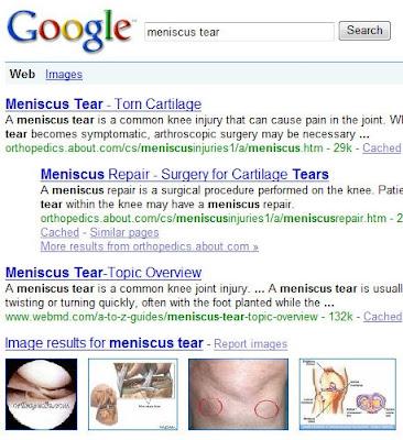 MENISCUS TEAR SYMPTOMS DOG
