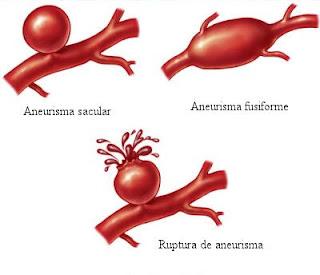 Aneurisma sacular e fusiforme