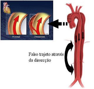 Aneurisma - Dissecção da aorta