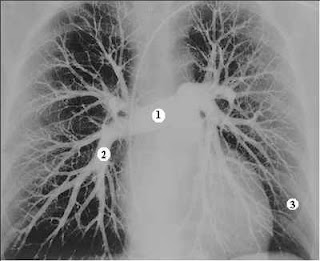 Angiografa pulmonar